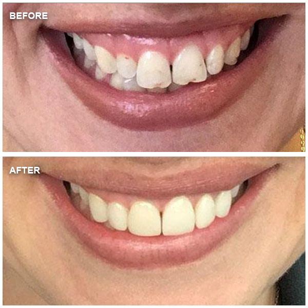 Before and After - Culver City Dentist Cosmetic and Family Dentistry